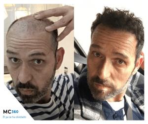 Antes y después de un injerto capilar