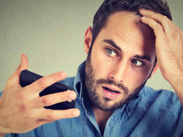 ¿Qué es el shock loss después de un injerto capilar?