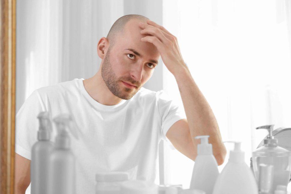 Índice de alopecia en España