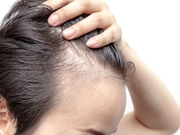 ¿Qué es la alopecia androgénica?