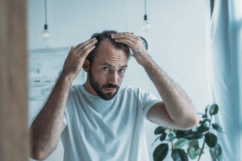 Primeros signos de alopecia