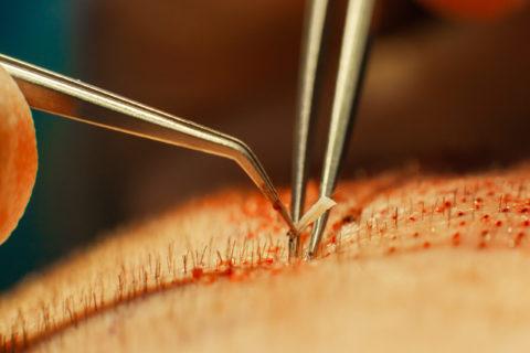 ¿Qué es la preanestesia en un injerto capilar?
