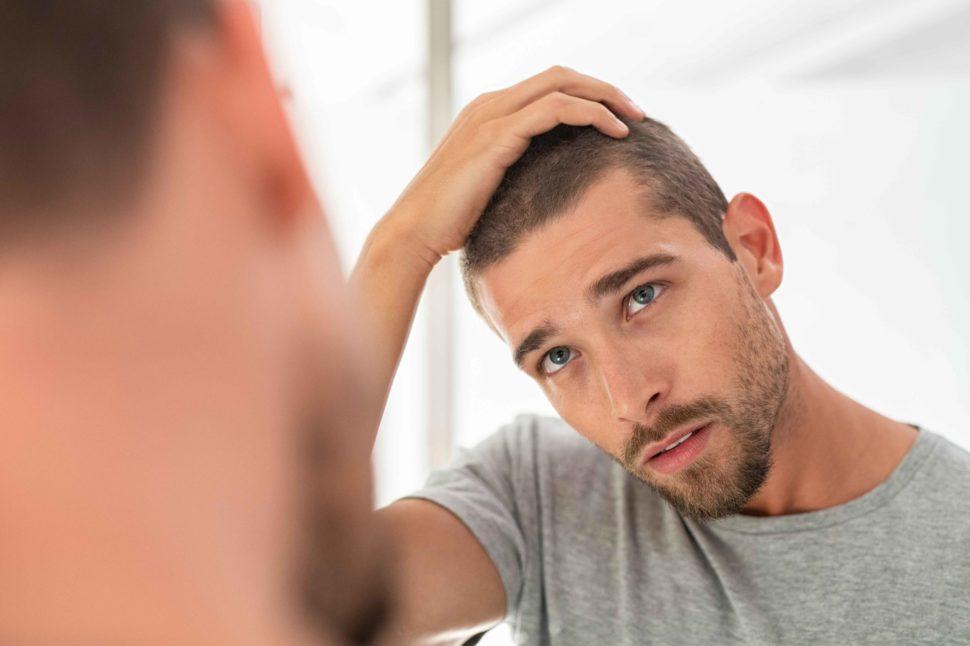 Minoxidil para el cabello