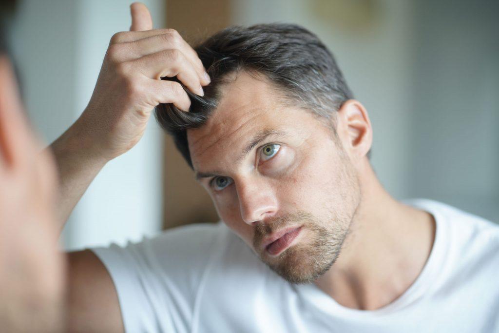 ¿Qué es la alopecia cicatrizal?