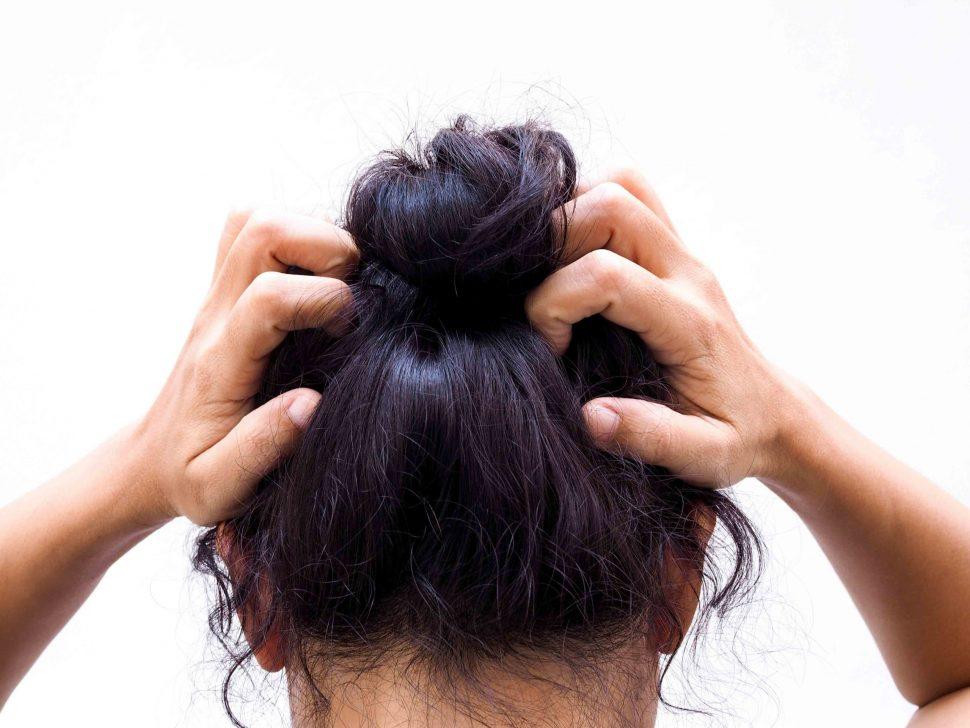 Cómo evitar los hongos en el cabello