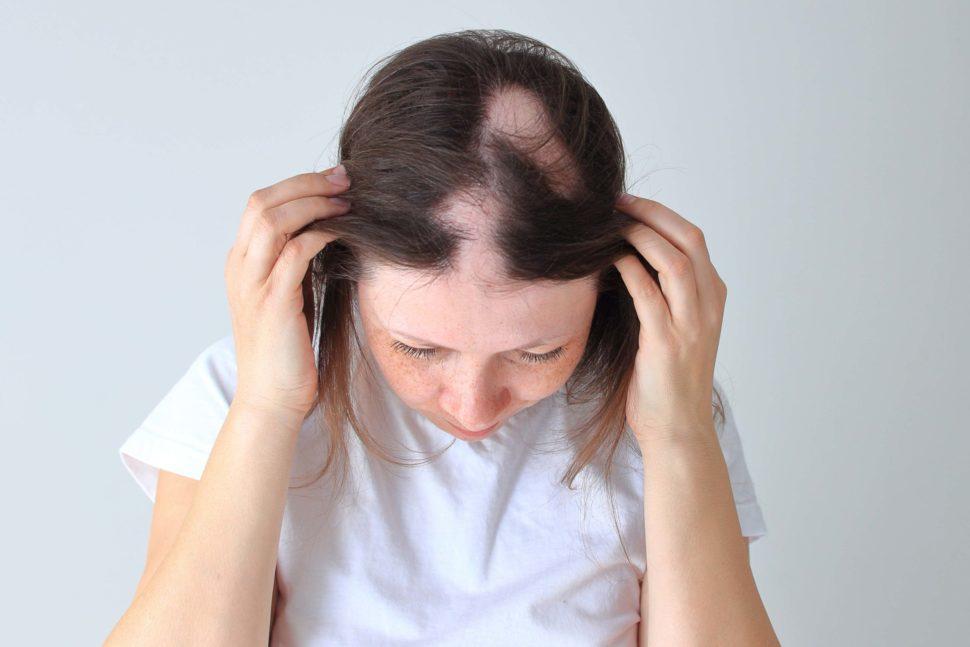 Tratamientos para la alopecia areata
