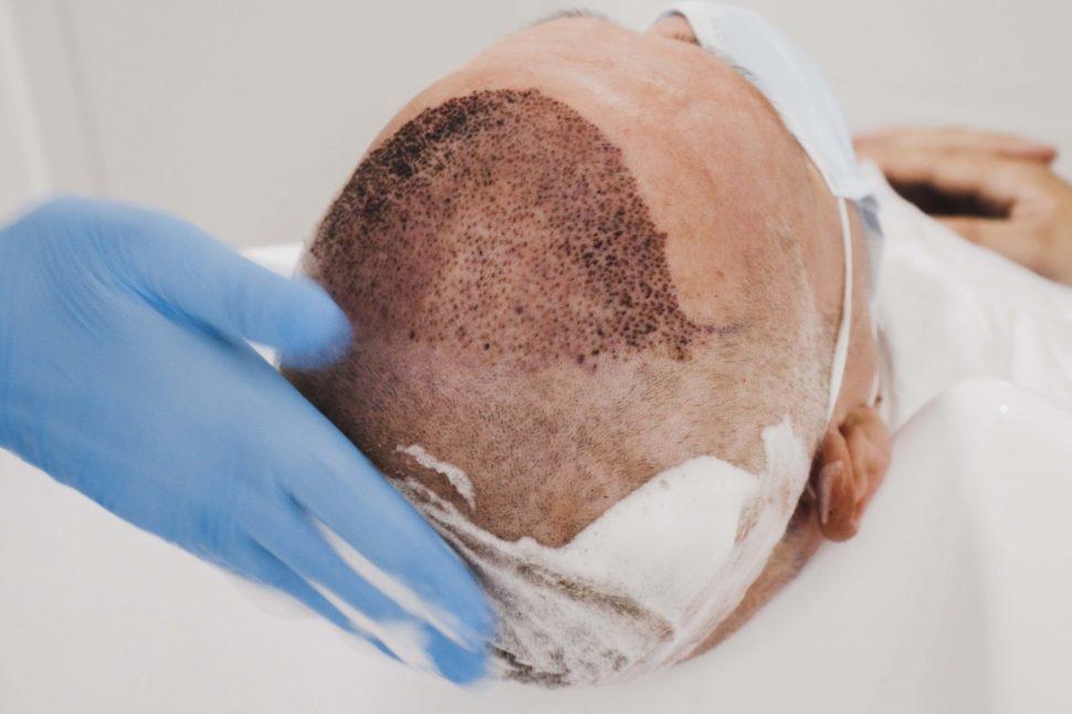 ¿Cómo hay que lavar el pelo tras un injerto capilar?