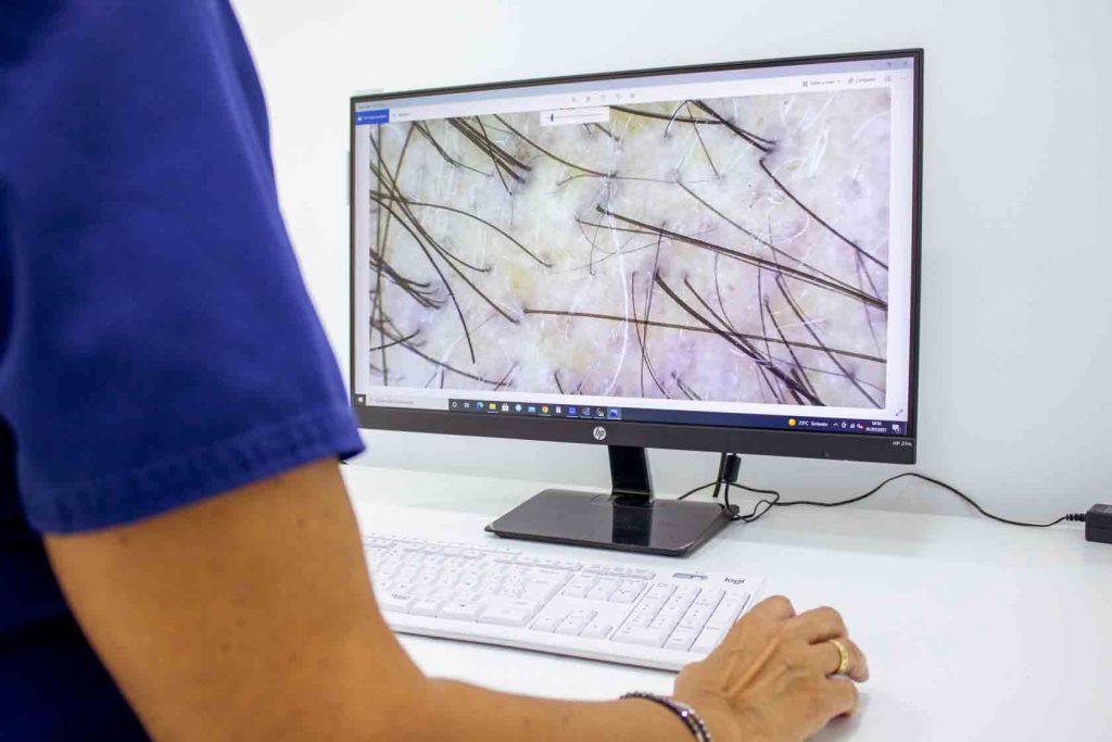 ¿Cómo se realiza el análisis por tricoscopia en un injerto capilar?