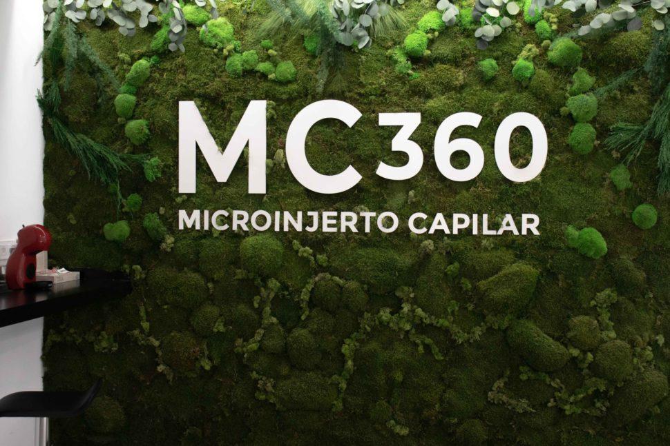 Ampliación de MC360