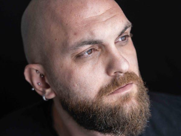 ¿Qué es la alopecia?